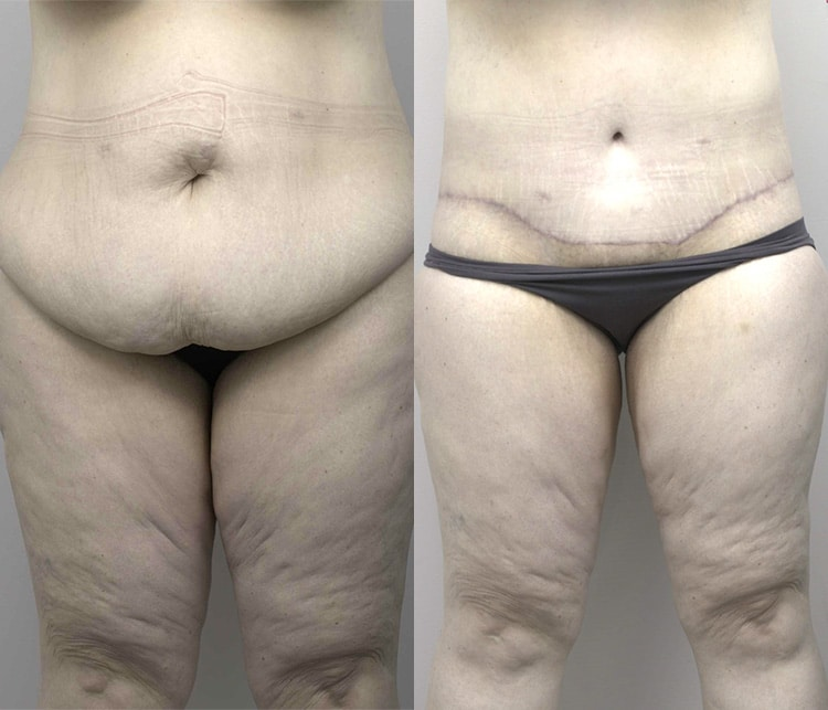 abdominoplasty patient before and after - image 001 - front view