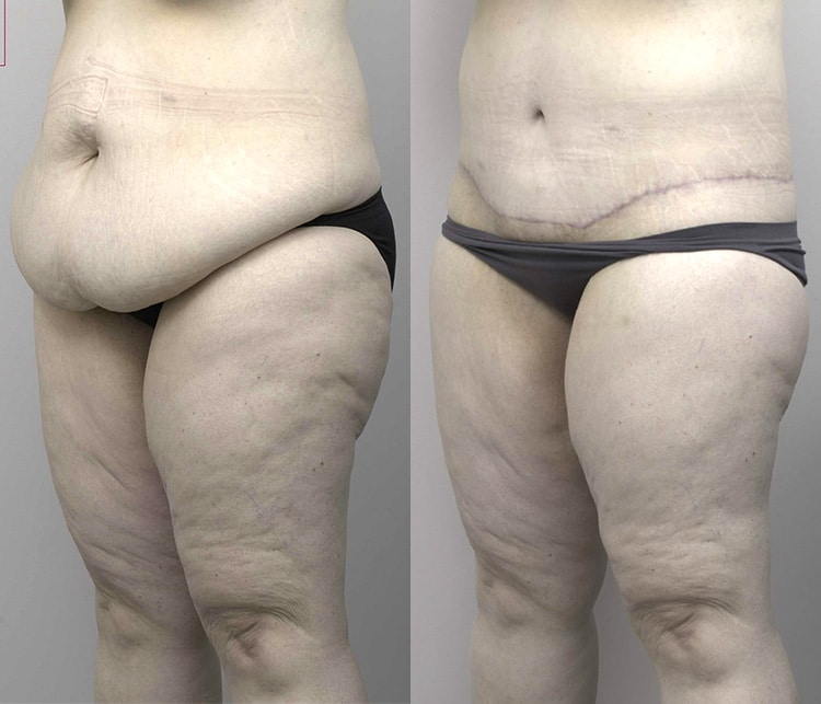 abdominoplasty before and after - image 002 - side view