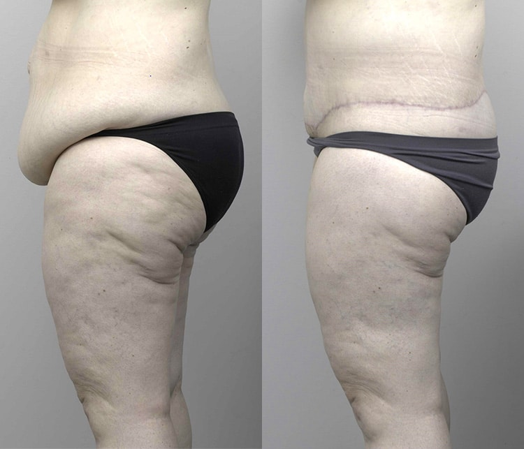 abdominoplasty before and afters - image 003 - side view