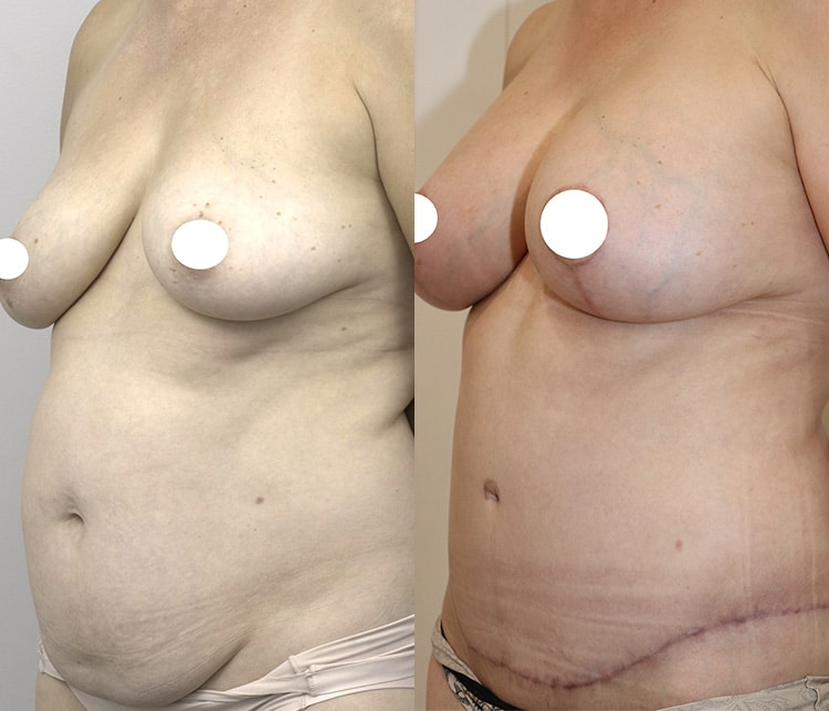 Tummy tuck before and after (abdominoplasty) 04, angle view