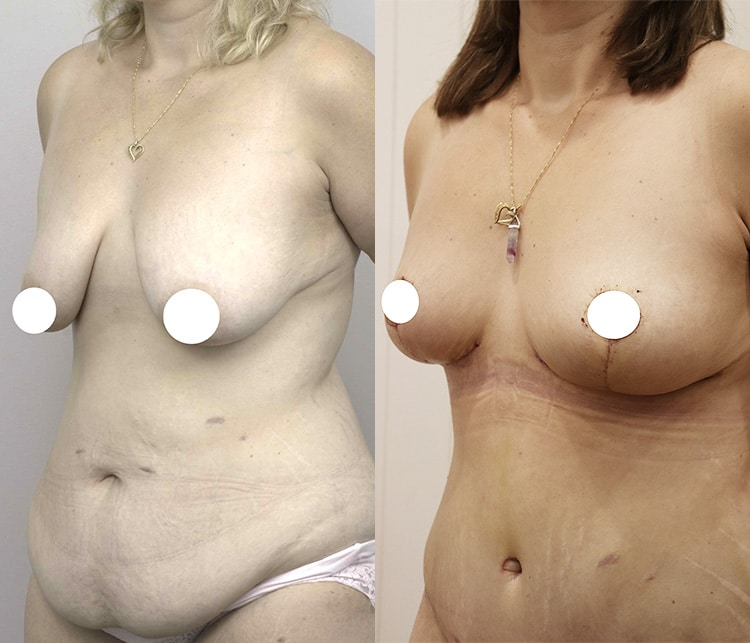 tummy tuck before and after - image 005 - front view
