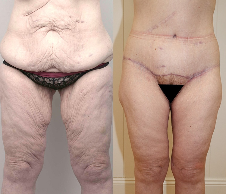 tummy tuck (abdominoplasty) before and after - image 006 - front view