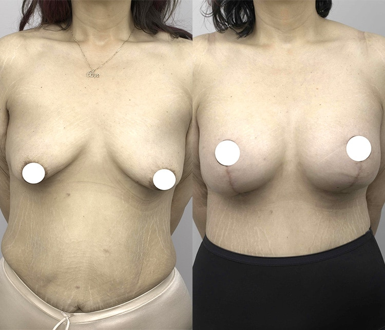 breast lift & augmentation surgery - image 001 - patient before and after - front view