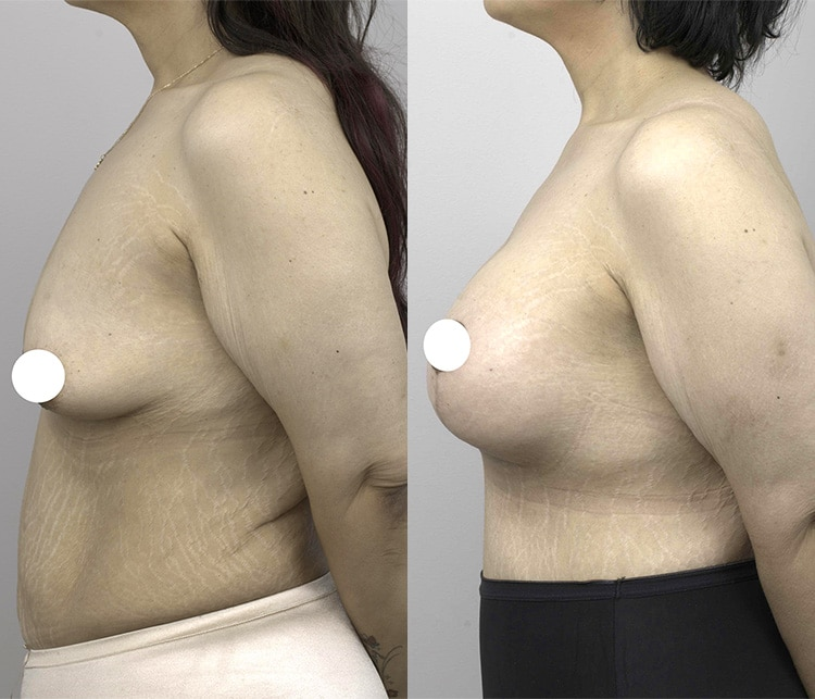 breast lift with augmentation - before & after gallery - image 002 - side view