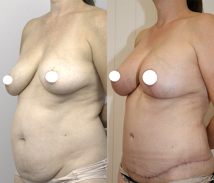 breast augmentation and lift surgery before and after - image 003 - 45 degree view