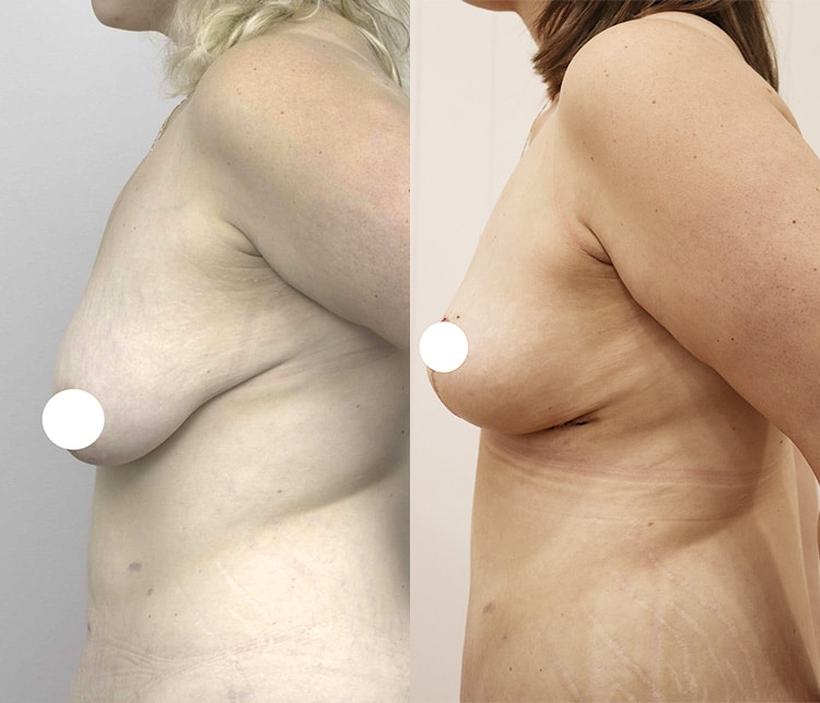 breast lift with augmentation - image 004 - before and after gallery - side view