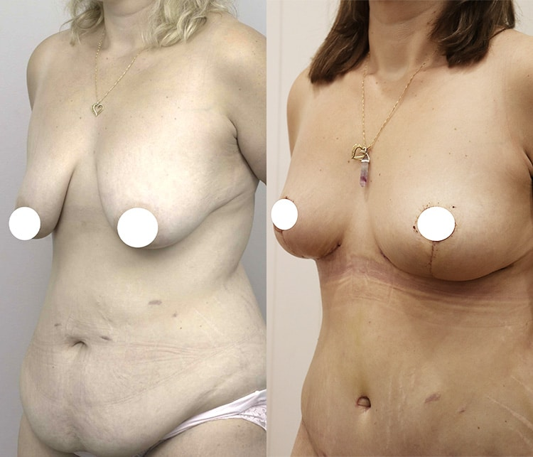 breast lift and augmentation surgery - image 005 - front view