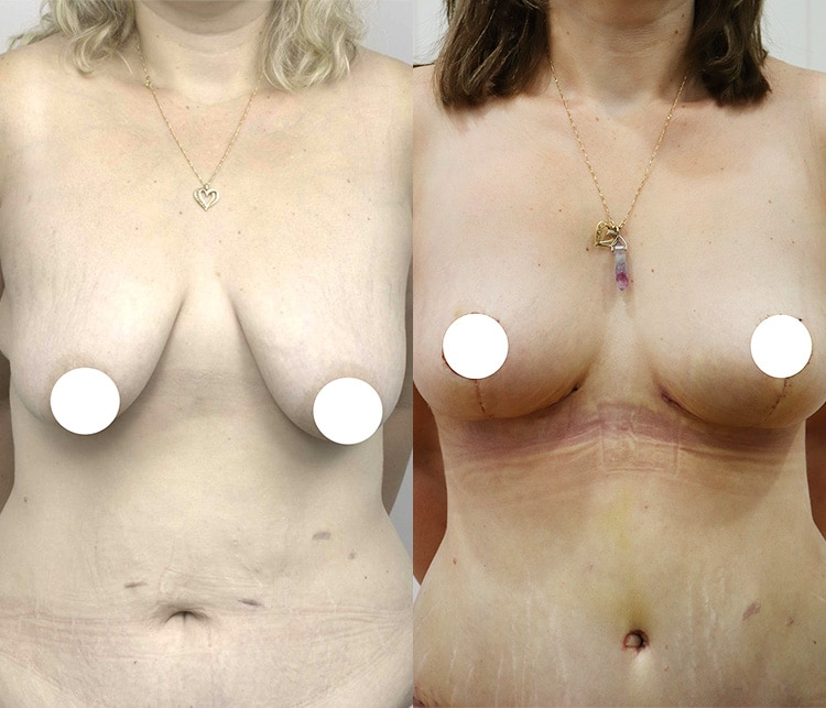 breast lift and augmentation before and after gallery - image 006 - front view