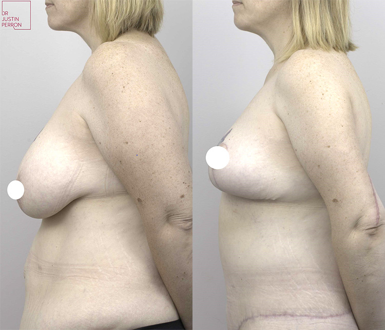 breast augmentation mastopexy before and after - image 007 - side view