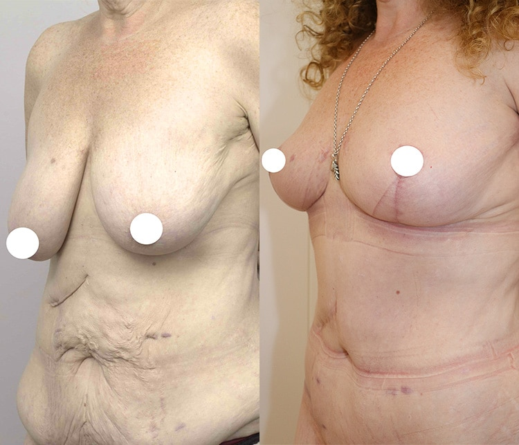 breast lift with augmentation - before and after - image 008 - side view
