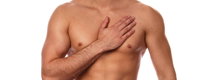 male breast reduction (gynaecomastia) - image 001