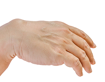 Hand surgery, Dupuytren's Contracture model 01