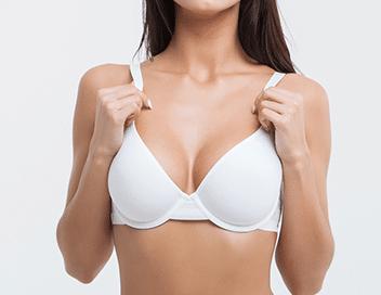 Breast surgery, breast augmentation model 01