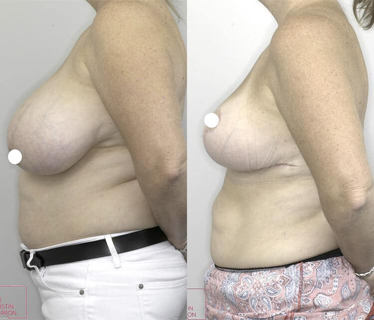 breast reduction before and after - image 001 - side view