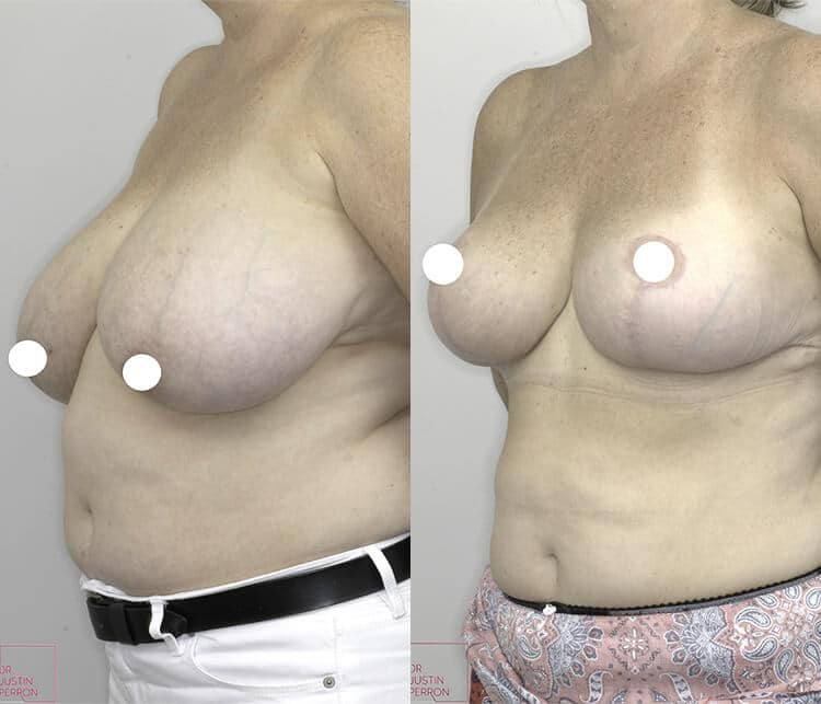 breast reduction before and after - image 002 - 45 degree view