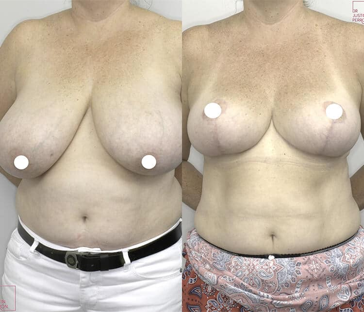 breast reduction before and after - image 003 - front view